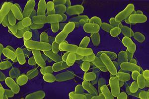 e.coli_skażenie _wody_w_studni